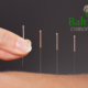 Acupuncture at Baltuska Chiropractic